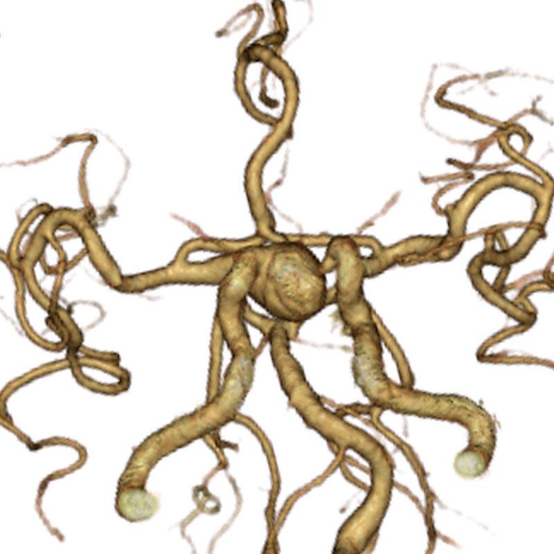 大型の右傍前床突起部内頚動脈瘤の3DCTA画像