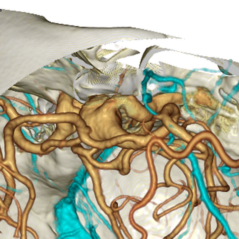 頭蓋骨を重ね合わせた手術のシミュレーション画像
