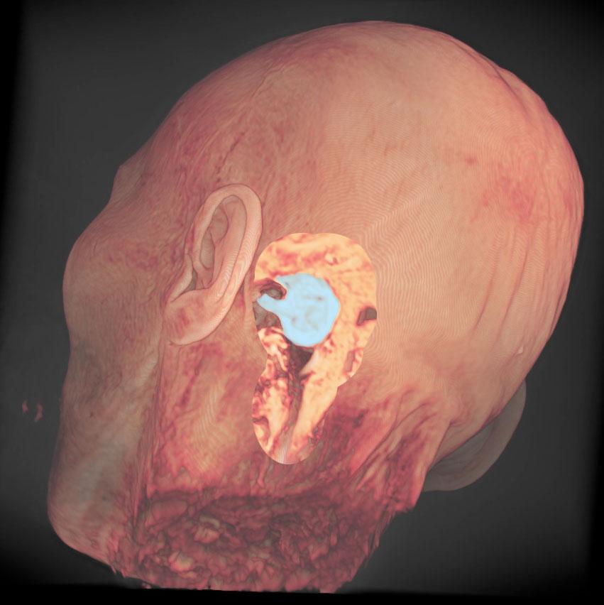 大型の聴神経腫瘍