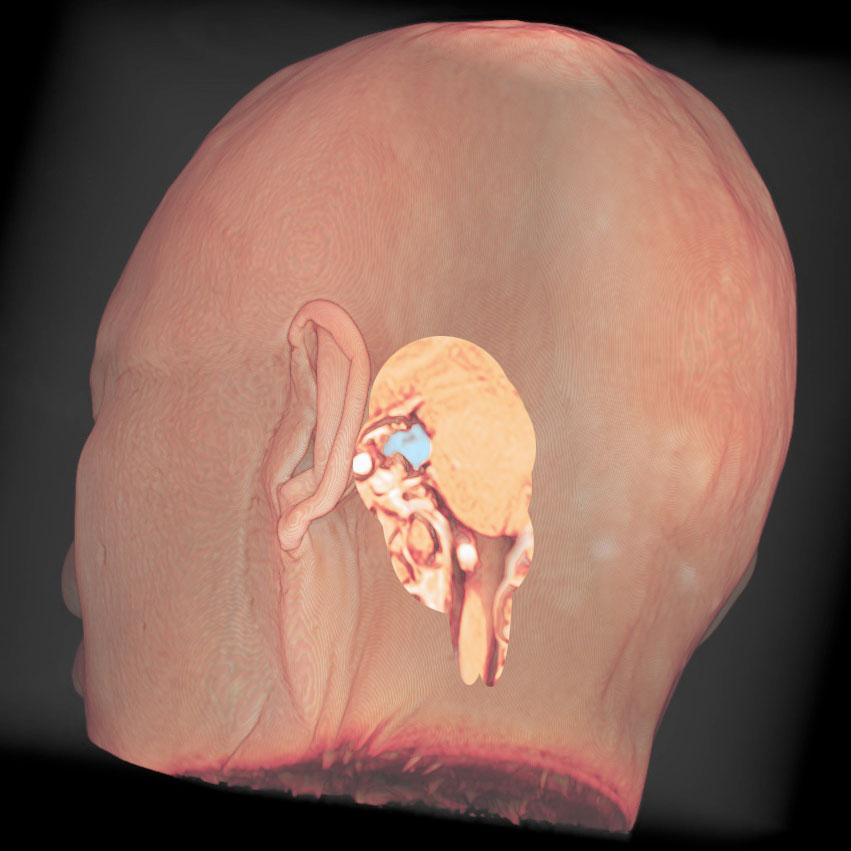 小型の聴神経腫瘍
