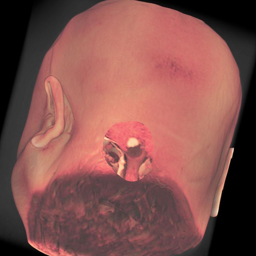 延髄背側の血管芽腫の症例