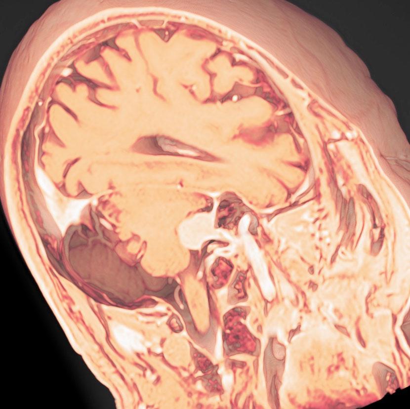 小脳橋角部髄膜腫