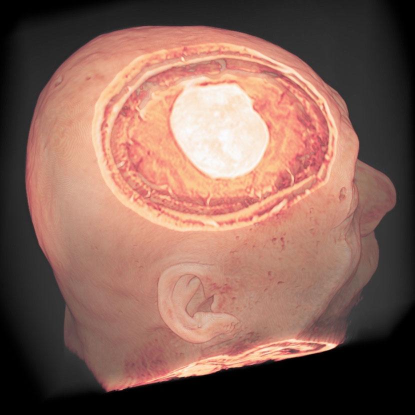 円蓋部髄膜腫