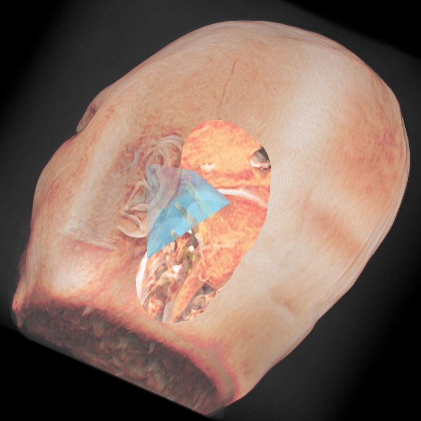 錐体骨と脳神経