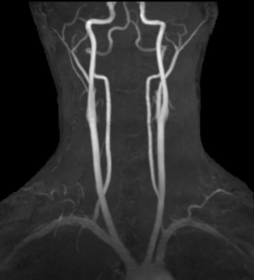 頚部血管MRA画像