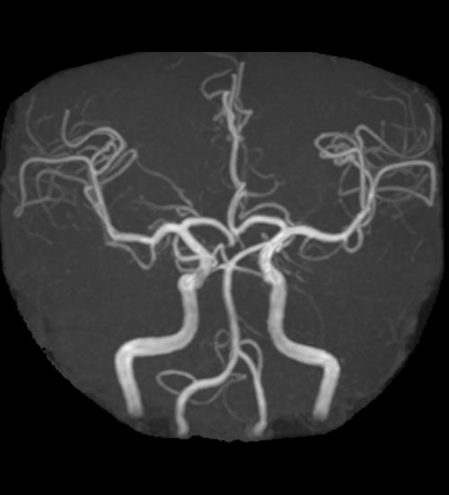 頭部血管MRA画像