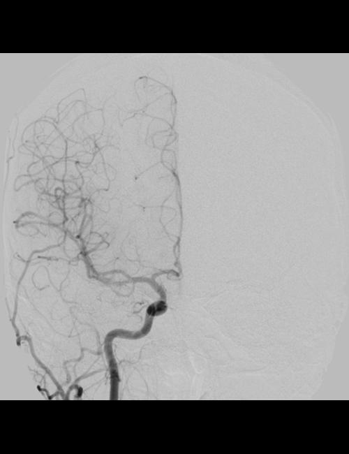 頭部血管造影 正面像