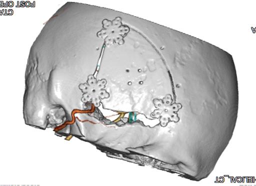 頭部血管3DCTA画像