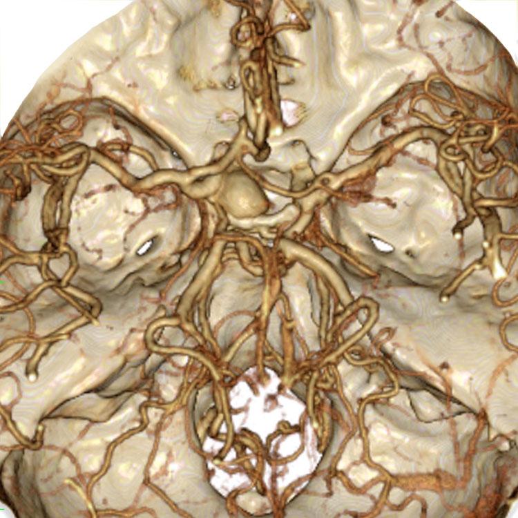 下垂体・傍鞍部腫瘍