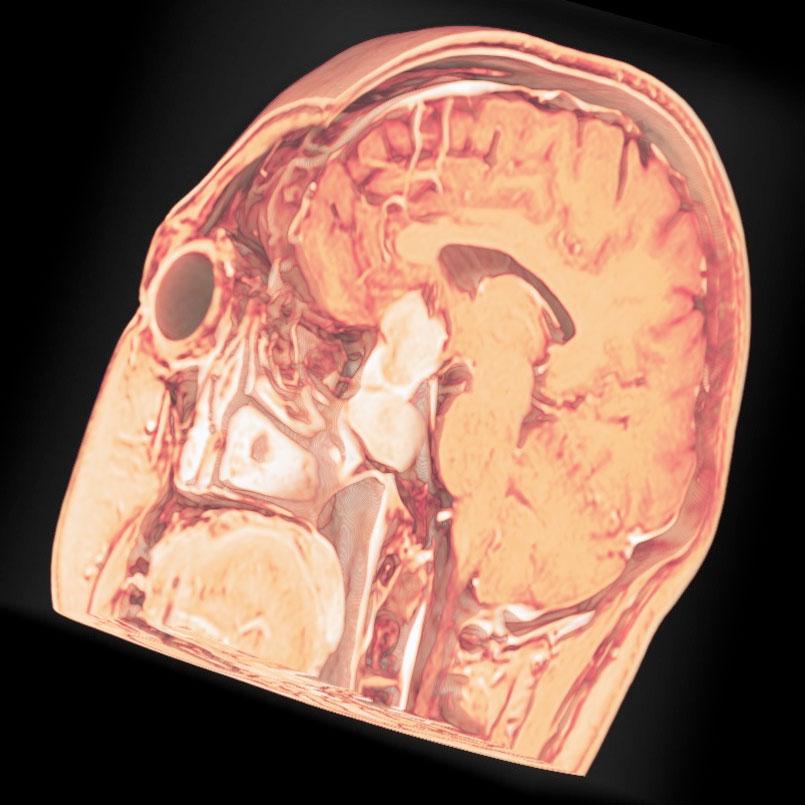 鞍上部進展・脳底部の圧迫
